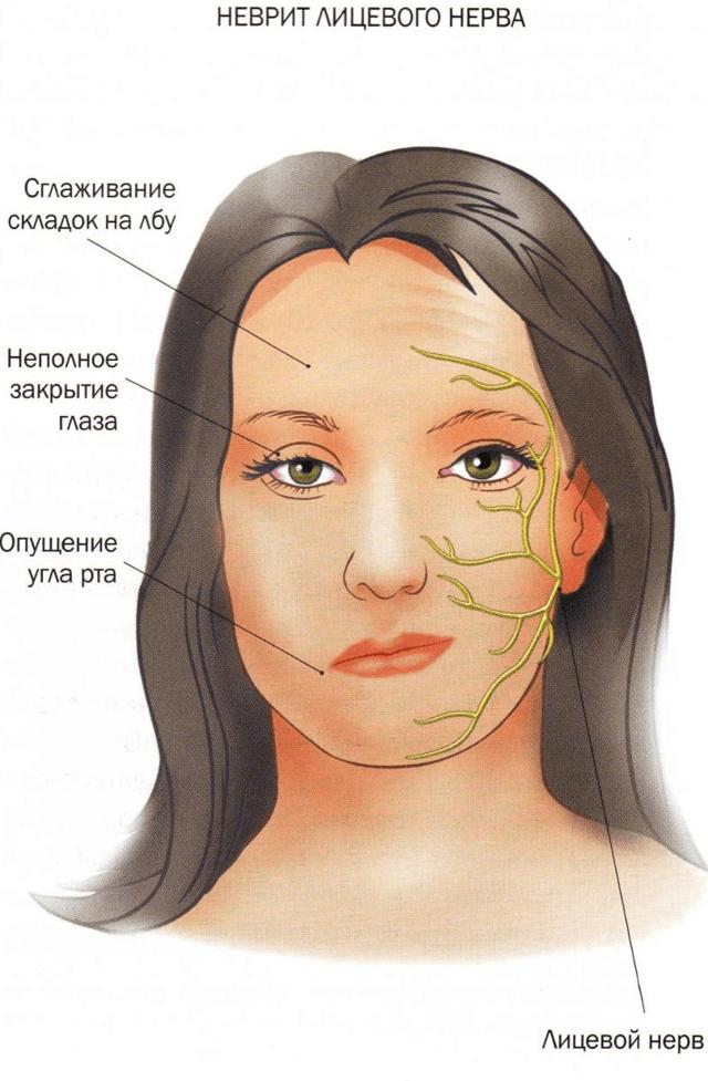 Оніміла губа, втратила чутливість - причини і що робити