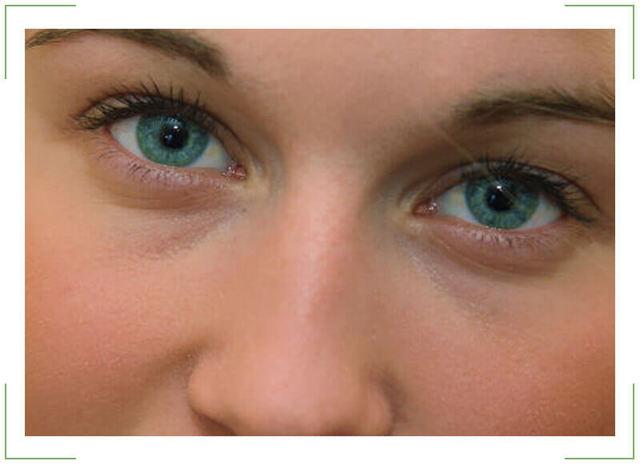 Чому набрякають очі вранці (верхні і нижні повіки)?