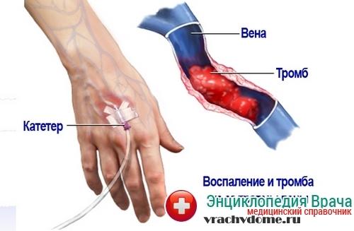 Лікування тромбозу глибоких вен нижніх кінцівок народними засобами