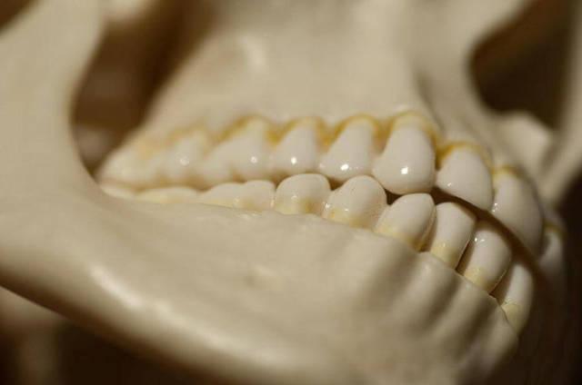 Хрумтить, клацає щелепу при відкритті рота або жуванні - причини