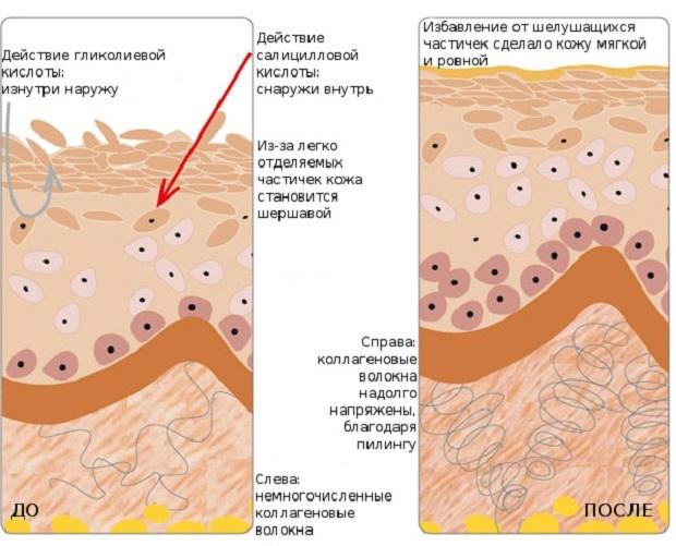 Темна шкіра на внутрішній стороні стегна - причини і як відбілити
