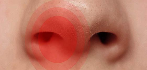 Виразки в носі і навколо нього - причини, лікування