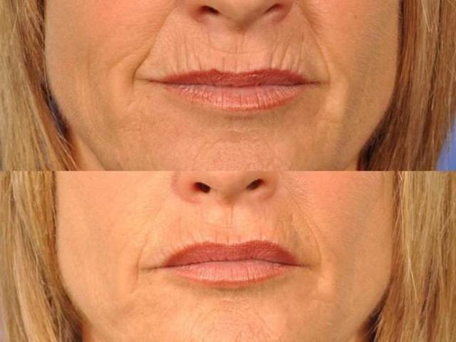 7 кроків, щоб позбутися від зморшок на губах