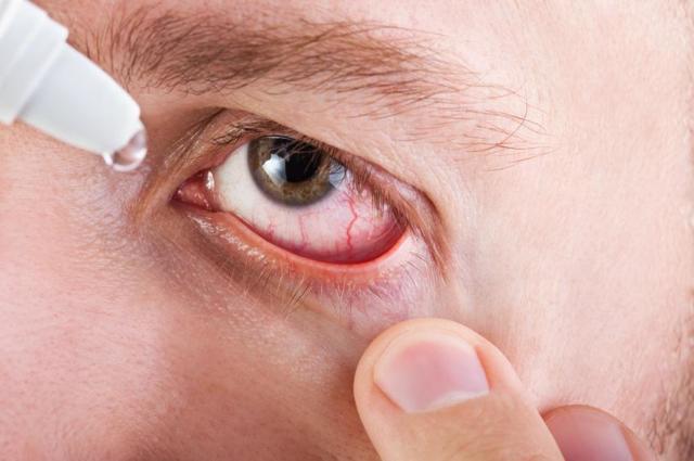 Опухло повіку - причини і лікування в домашніх умовах