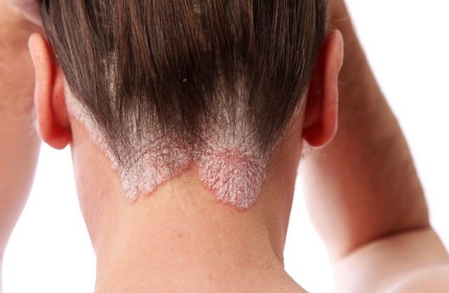 Дитина чеше голову - причини і що робити