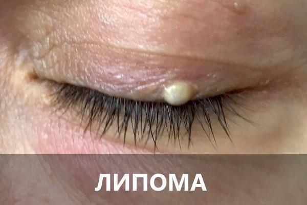 Шишка, кулька або горбок на оці - причини, фото і що робити