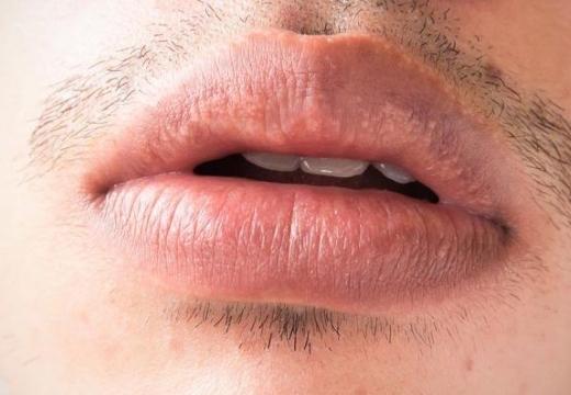 Як позбутися від білих плям Фордайса на губах?