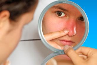 Почервоніння навколо носа - причини, фото і як позбутися?