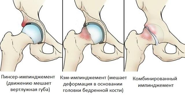 Біль на внутрішній стороні стегна - причини і лікування