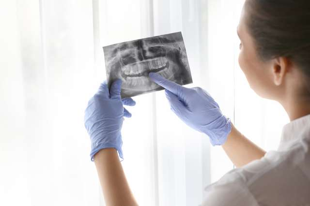 Темні плями на яснах і небі - фото, причини і лікування