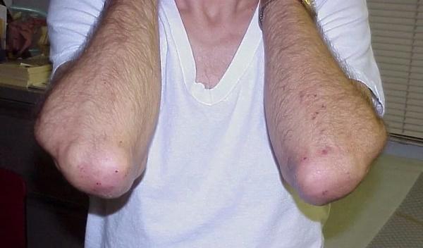 Висип на ліктях - причини, фото, лікування