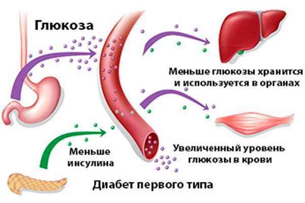 Лук при діабеті цукровому 2 і 1 типу: чи можна їсти печену, смажену, настій, ріпчаста, червоний, лушпиння