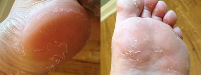 Лущиться, облазив шкіра ніг - причини, фото, лікування