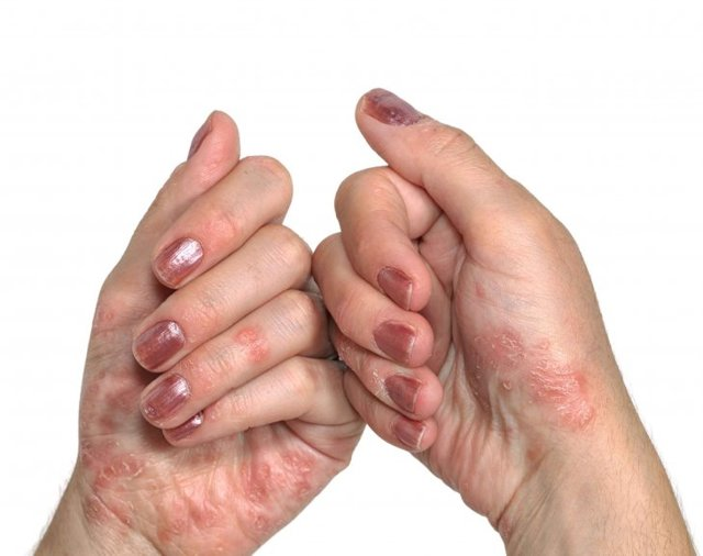 Тріскаються кінчики пальців на руках - причини, фото, лікування