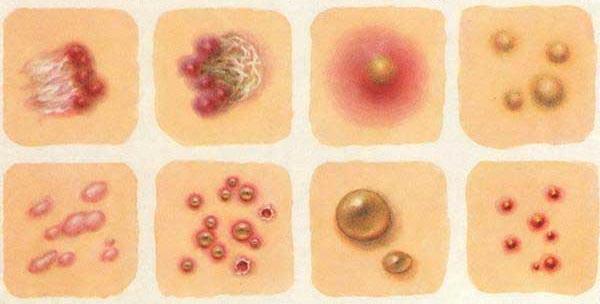 Висип на тілі - причини, фото, пояснення, лікування