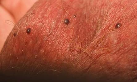 Чорні або червоні точки на мошонці - причини і як лікувати