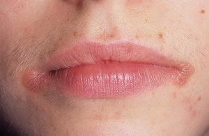 Сильно тріскаються губи - причини і засоби для лікування