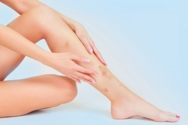 Темні плями або крапки на ногах - причини, фото і як позбутися