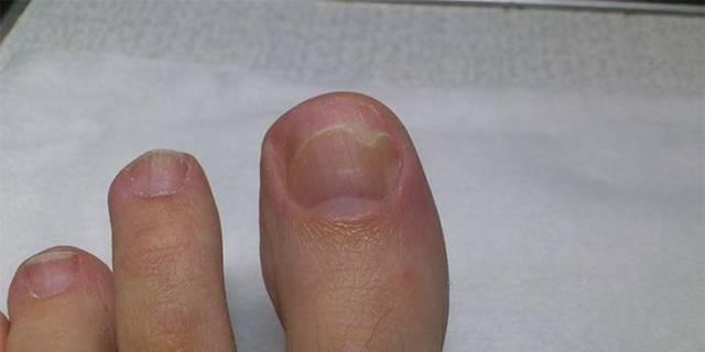 Погані, пошкоджені нігті - причини, фото, лікування
