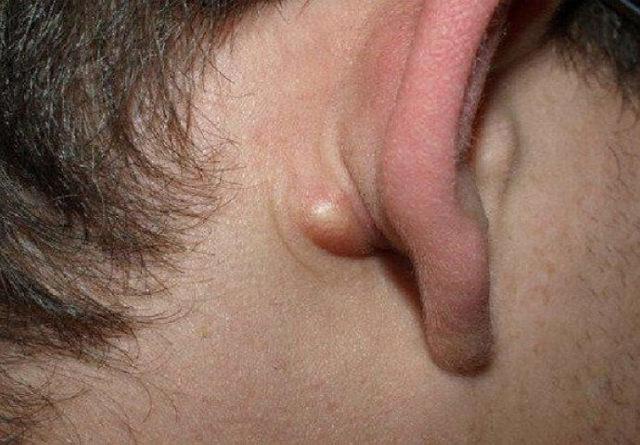 За вухом з'явилася шишка - причини, фото, лікування