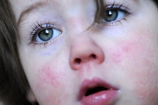 Краснуха у дітей: симптоми, лікування, профілактика, відео