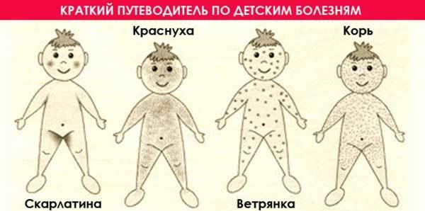 Висип і температура у дитини: 11 провідних причин і поради педіатра