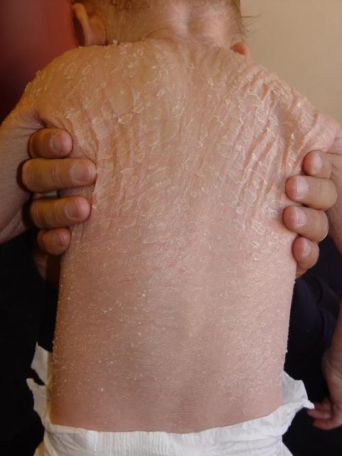 Шкірні захворювання у новонароджених: 7 проявів, що робити, догляд за шкірою