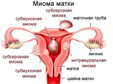 Чому з'являються коричневі виділення після менструації
