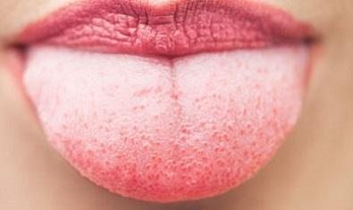 Прищі на мові: причини виникнення та лікування проблеми