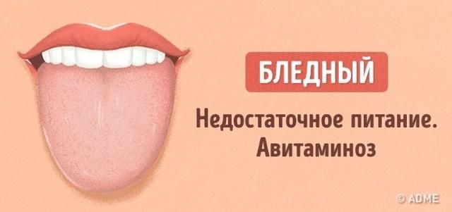 Мова - дзеркало здоров'я.  Види і причини нальоту на мові